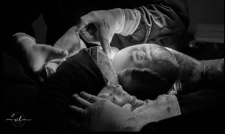 Fotógrafa faz foto e vídeo de nascimento de bebê empelicado em SC; registro é considerado raro